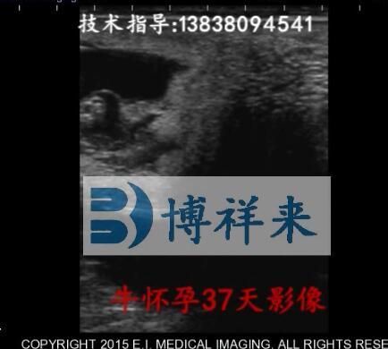 牛怀孕37天B超影像