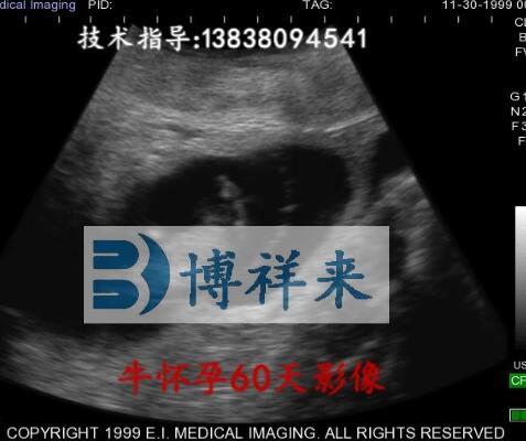 兽用B超机牛怀孕60天影像